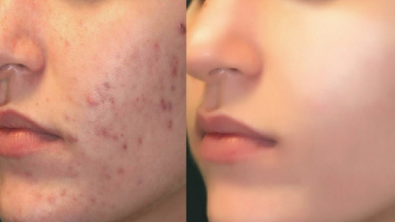 Flaxseed-Acne-Removal-Method